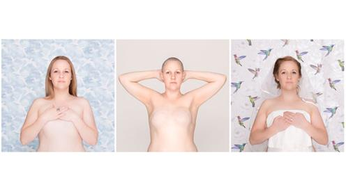 Three images of a woman with breast cancer
